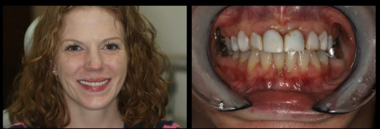 denture before and after images of a womans mouth in hedgesville, WV