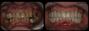full mouth reconstruction ii 300x105